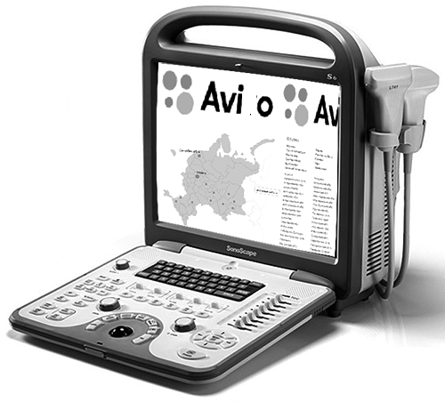 Сканер Ави